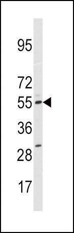 CYP11A1 Antibody (PA5-15070) in Western Blot