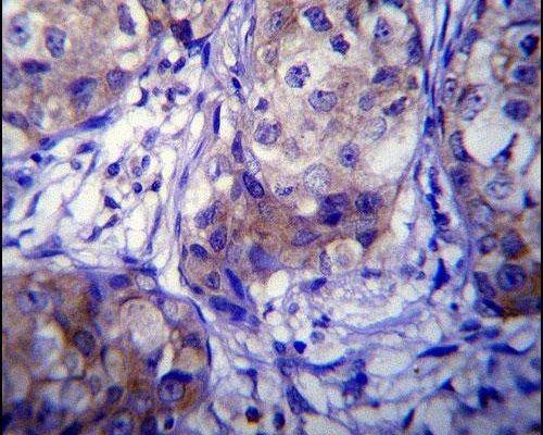 CYP1A1 Antibody (PA5-15213) in Immunohistochemistry