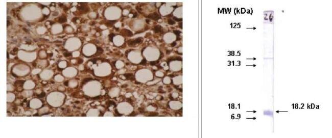 CYP26A1 Antibody (MA1-12889) in Immunohistochemistry