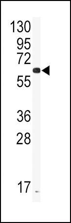 CYP2J2 Antibody (PA5-14353) in Western Blot