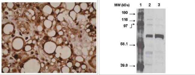 CYP4F11 Antibody (MA1-12890) in Immunohistochemistry