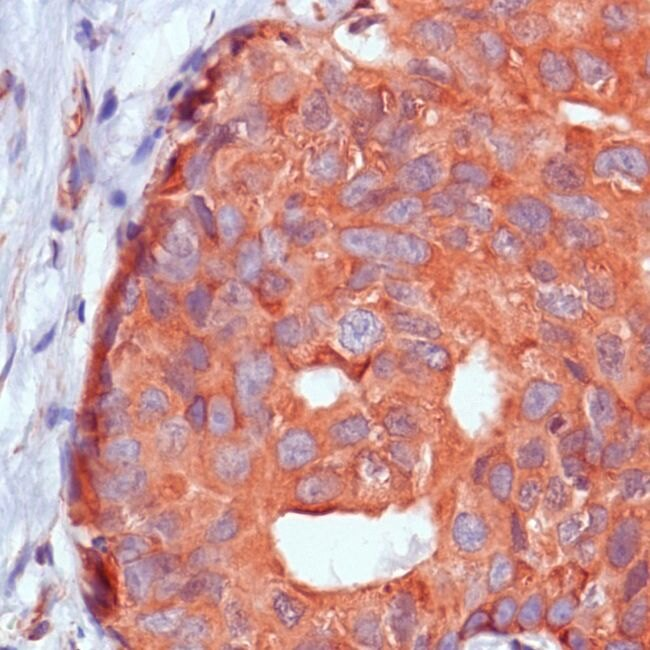 Calpastatin Antibody (MA5-16327) in Immunohistochemistry