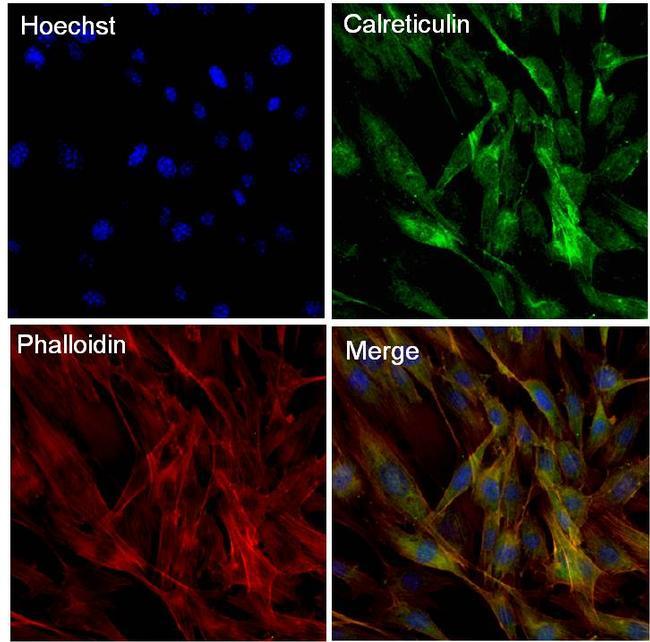 Calreticulin Antibody (MA5-15382) in Immunofluorescence