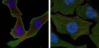 Calreticulin Antibody (MA5-15382)