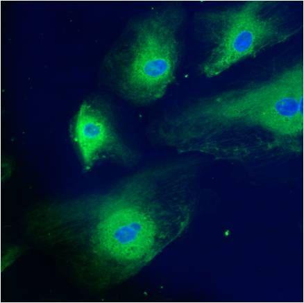 Calreticulin Polyclonal Antibody