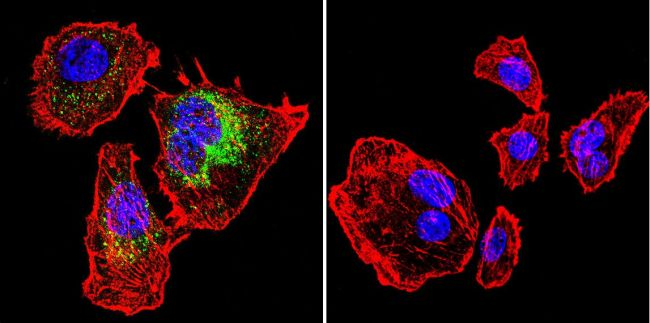 Calsequestrin Antibody (MA3-913) in Immunofluorescence