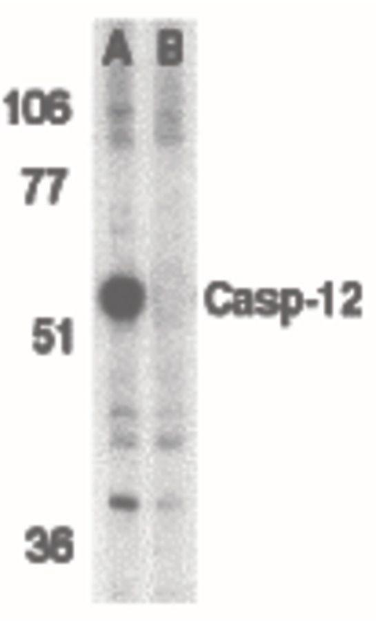 Caspase 12 Antibody (PA5-19963) in Western Blot