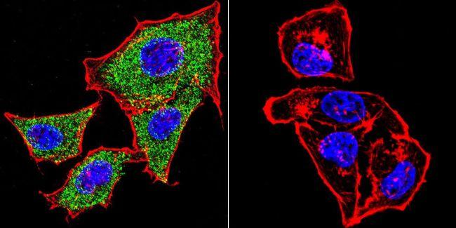 alpha Catenin Antibody (MA1-2000) in Immunofluorescence