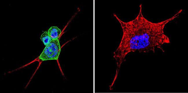 beta Catenin Antibody (MA1-301) in Immunofluorescence