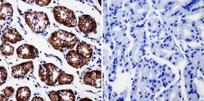 beta Catenin Antibody (MA1-301) in Immunohistochemistry
