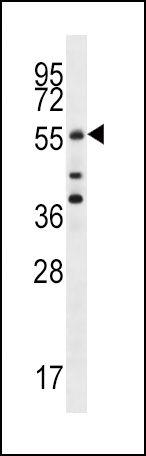Cdc25A Antibody (PA5-13261) in Western Blot