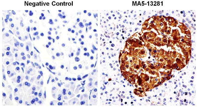 Chromogranin A Antibody (MA5-13281)