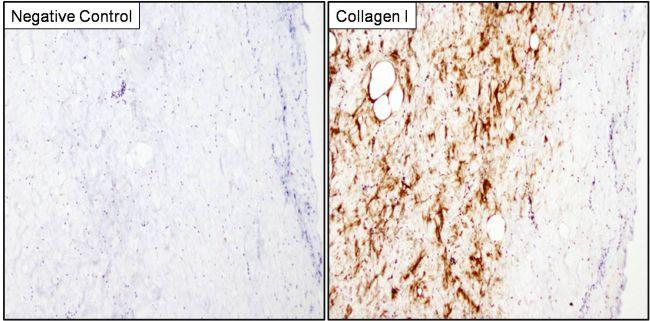 Collagen I Antibody (MA1-141) in Immunohistochemistry (Paraffin)