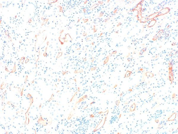 Complement C4d Antibody (PA1-85168) in Immunohistochemistry (Paraffin)