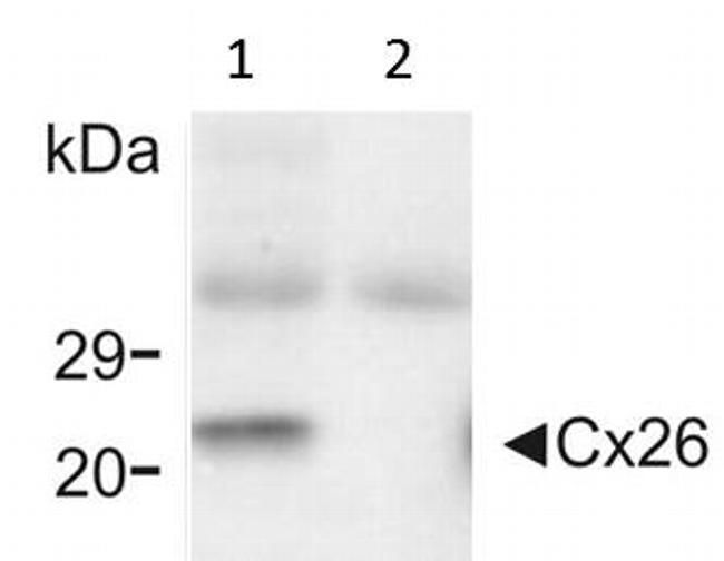 Connexin 26 Antibody Monoclonal Cx 12h10
