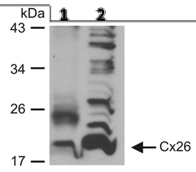 Connexin 26 Antibody (71-0500) in Western Blot