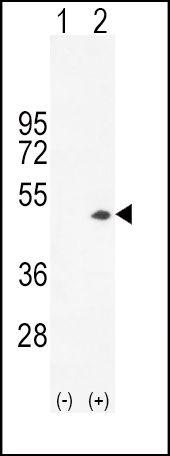 Creatine Kinase BB Antibody (PA5-13811)