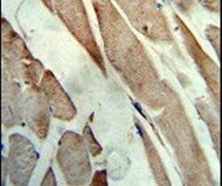 Creatine Kinase MB Antibody (PA5-13830) in Immunohistochemistry