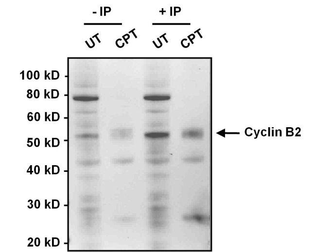 Cyclin B2 Antibody (MA1-156) in Immunoprecipitation