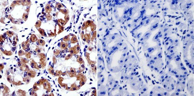 Cytohesin 2 Antibody (MA1-061) in Immunohistochemistry