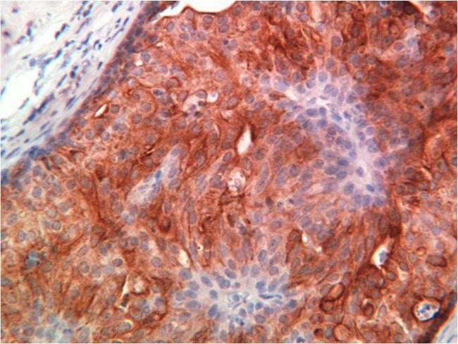 Cytokeratin 18 Antibody (MA5-14479) in Immunohistochemistry (Paraffin)