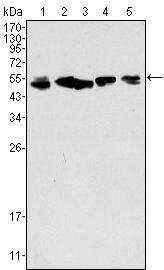Cytokeratin 8 Antibody (MA5-15460) in Western Blot