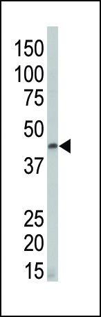 DAPK2 Antibody (PA5-14045) in Western Blot
