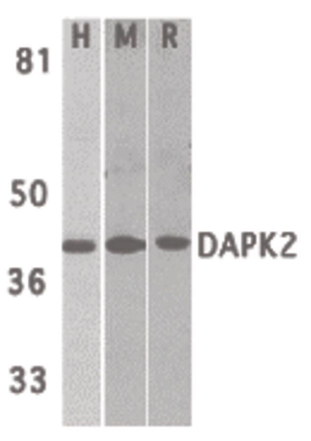 DAPK2 Antibody (PA5-19961) in Western Blot
