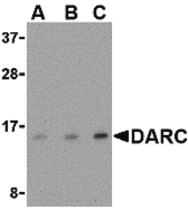 DARC Antibody (PA5-20360) in Western Blot