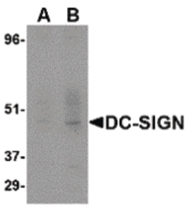 DC-SIGN Antibody (MA5-15745)