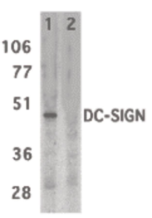 DC-SIGN Antibody (PA5-19967) in Western Blot