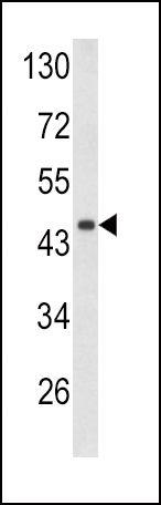 Decorin Antibody (PA5-13538) in Western Blot