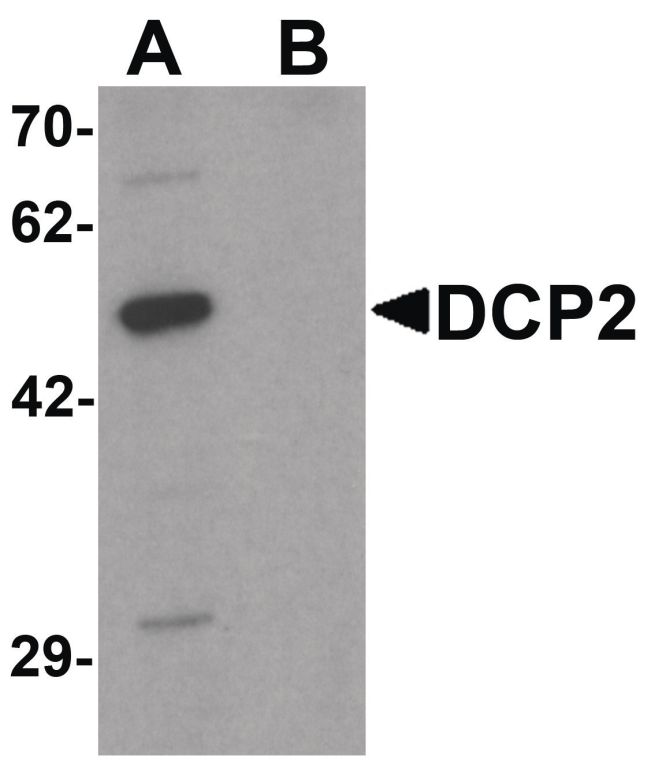 DCP2 Antibody (PA5-34455) in Western Blot