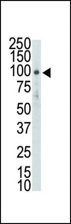 DDR2 Antibody (PA5-14751)
