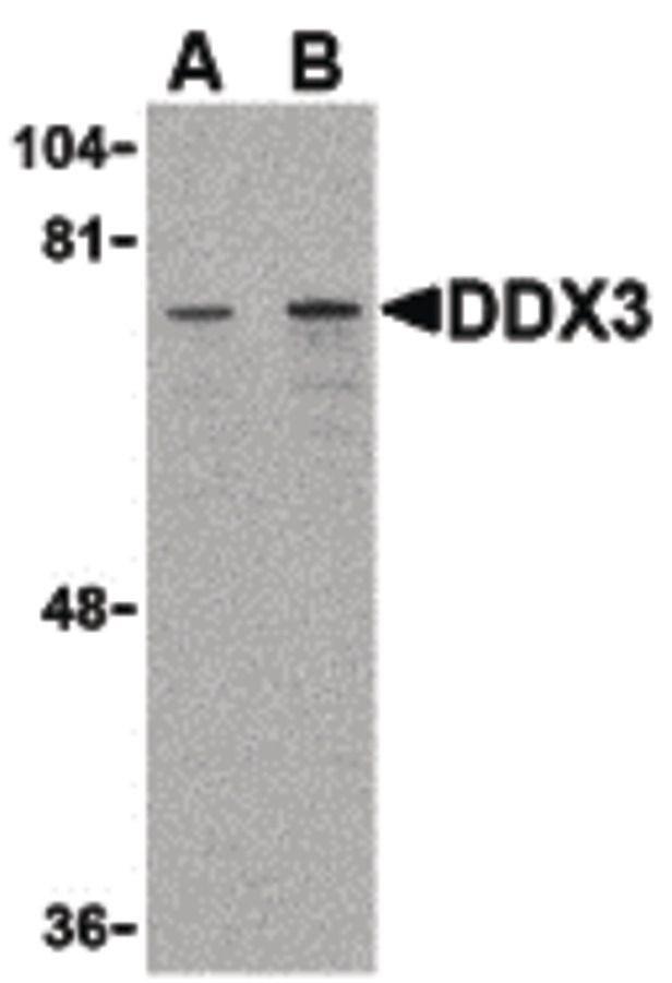 DDX3 Antibody (PA5-20225) in Western Blot