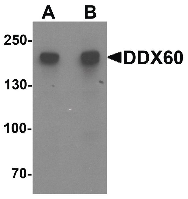 DDX60 Antibody (PA5-34442) in Western Blot