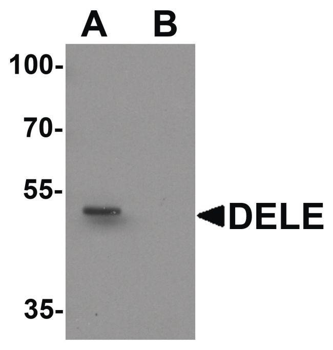 DELE Antibody (PA5-34403) in Western Blot