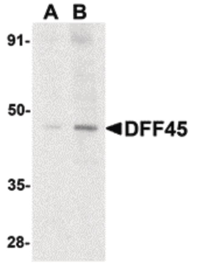 ICAD Antibody (PA5-19878) in Western Blot