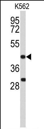 ICAD Antibody (PA5-26294) in Western Blot