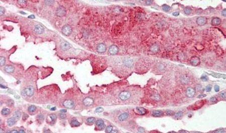 DHRS7 Antibody (PA5-32720) in Immunohistochemistry (Paraffin)
