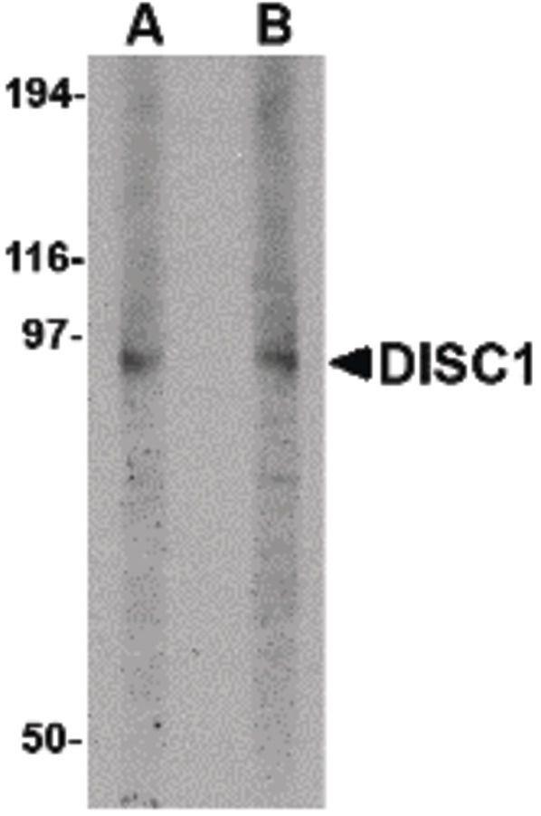 DISC1 Antibody (PA5-20422) in Western Blot