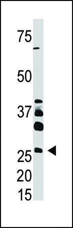 DKK4 Antibody (PA5-11620) in Western Blot