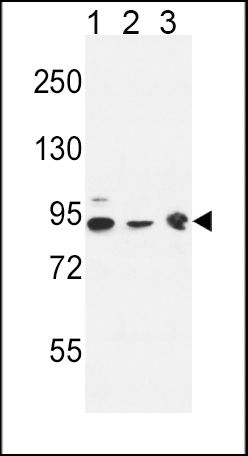 DNAJC6 Antibody (PA5-26981) in Western Blot