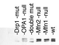 DNM1L Antibody (PA1-16986) in Western Blot