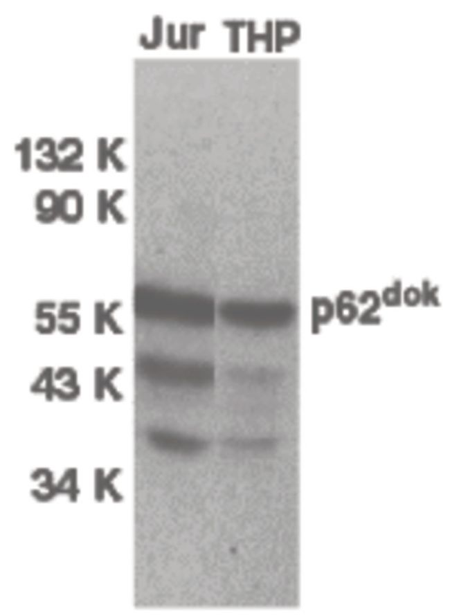 DOK1 Antibody (PA5-19860) in Western Blot