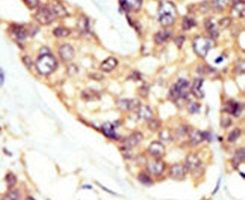 DOK5 Antibody (PA5-14756) in Immunohistochemistry