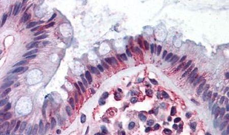 DPEP1 Antibody (PA5-32723) in Immunohistochemistry (Paraffin)