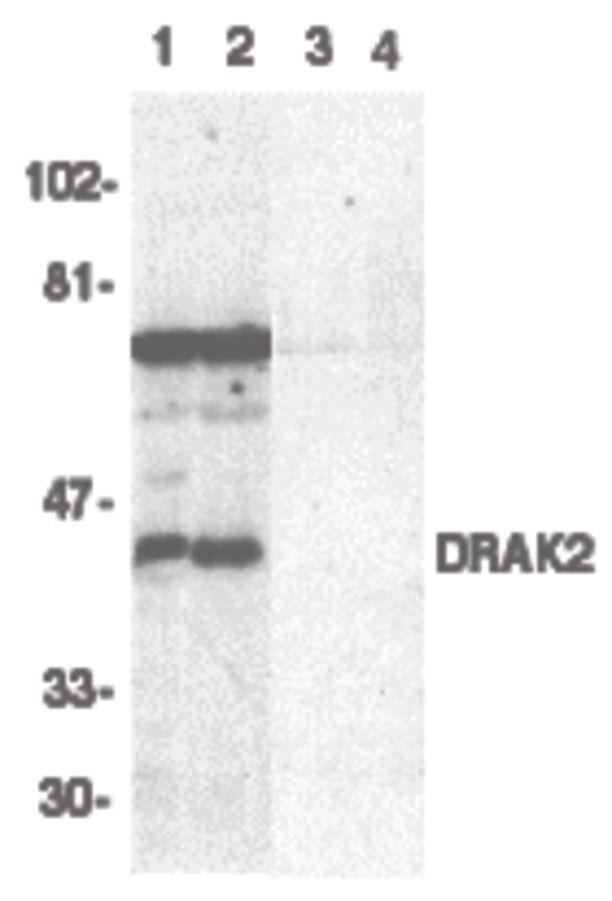 DRAK2 Antibody (PA5-19927) in Western Blot