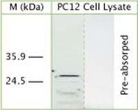 DRAM Antibody (OSA00052W) in Western Blot