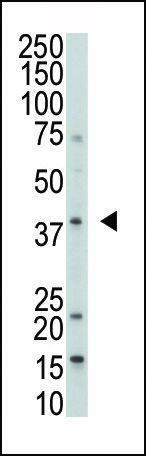 MKP-1 Antibody (PA5-15593) in Western Blot